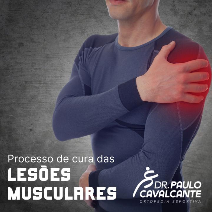 Processo de Cura das Lesões Musculares.